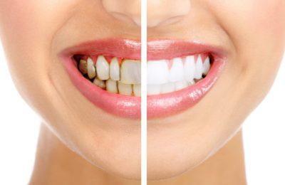 Tẩy trắng răng ở Đà Nẵng bao nhiêu tiền